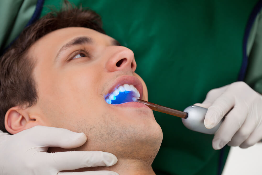 Tooth Bonding Versus Veneers