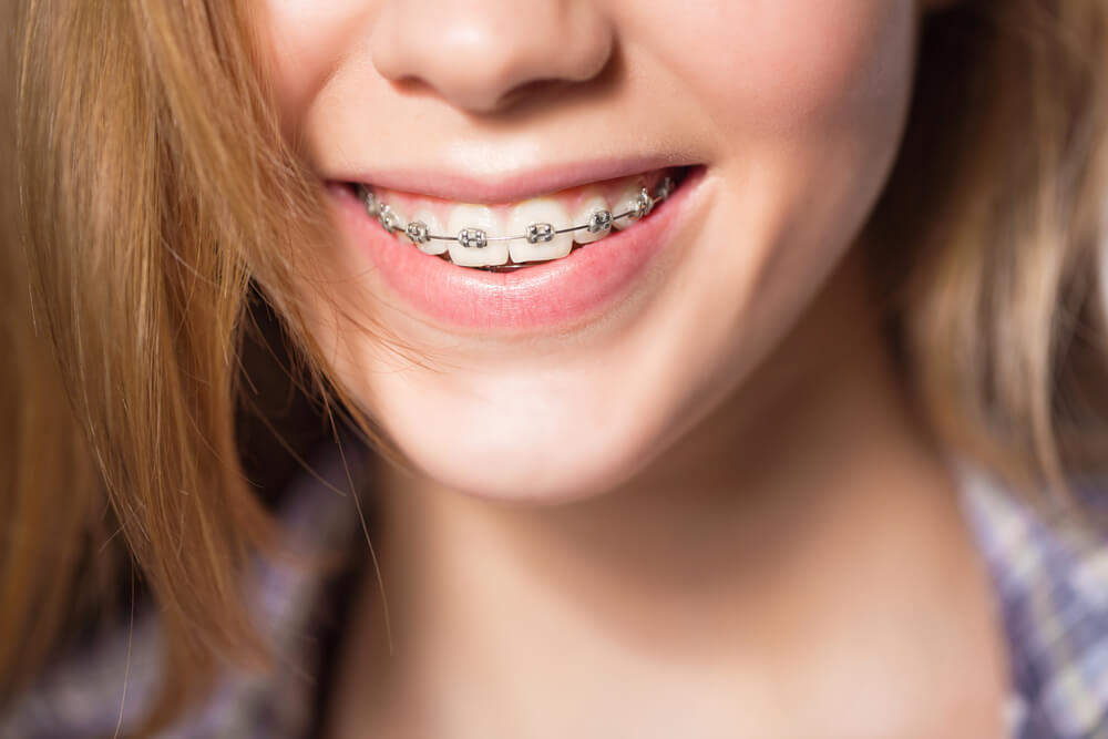 What Helps With Braces Pain?
